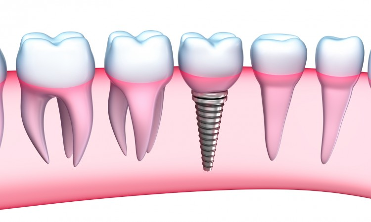 clinica-dental-rodolfo-pita