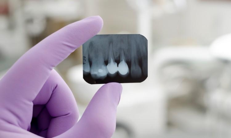 implante_dental