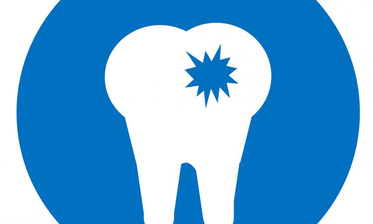 implantes dentales,