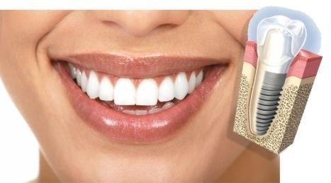 Implantes-Dentales-Clinica-Dental-Lanchares