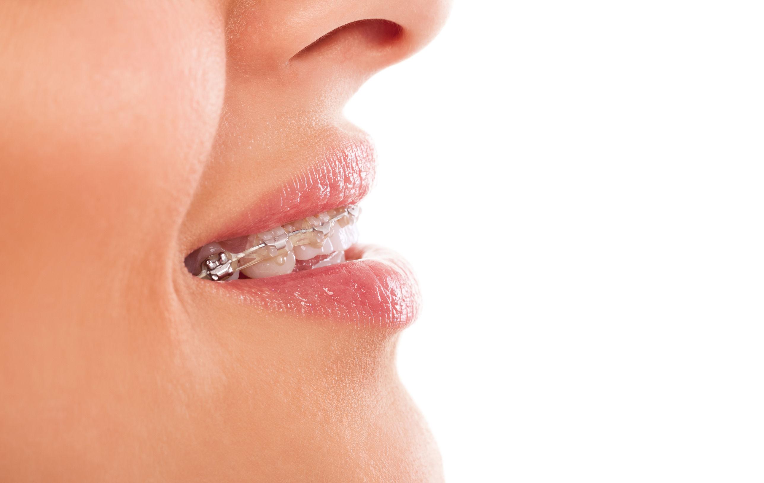 ortodoncia,