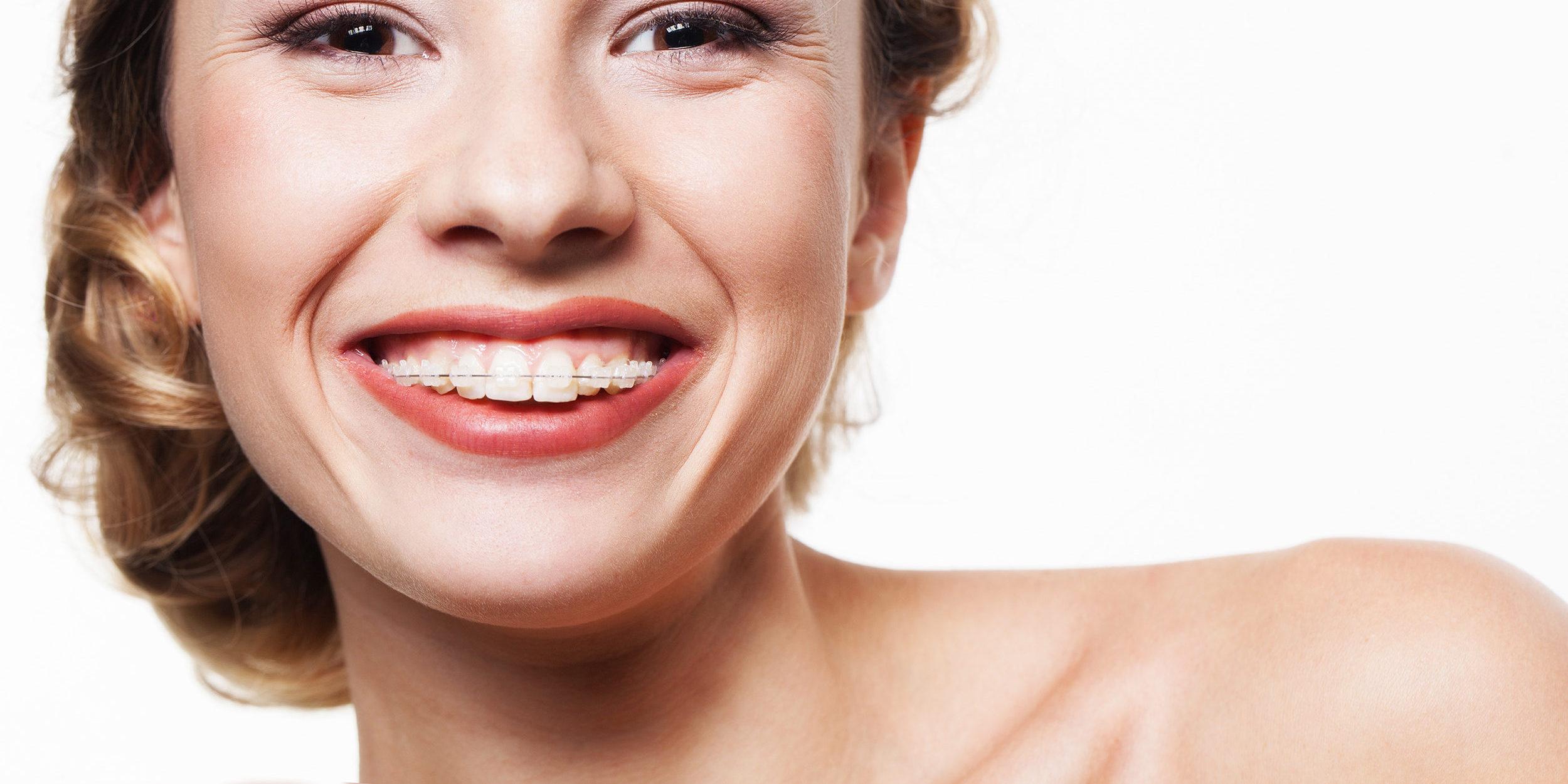 ortodoncia-zafiro2-e1468508704964