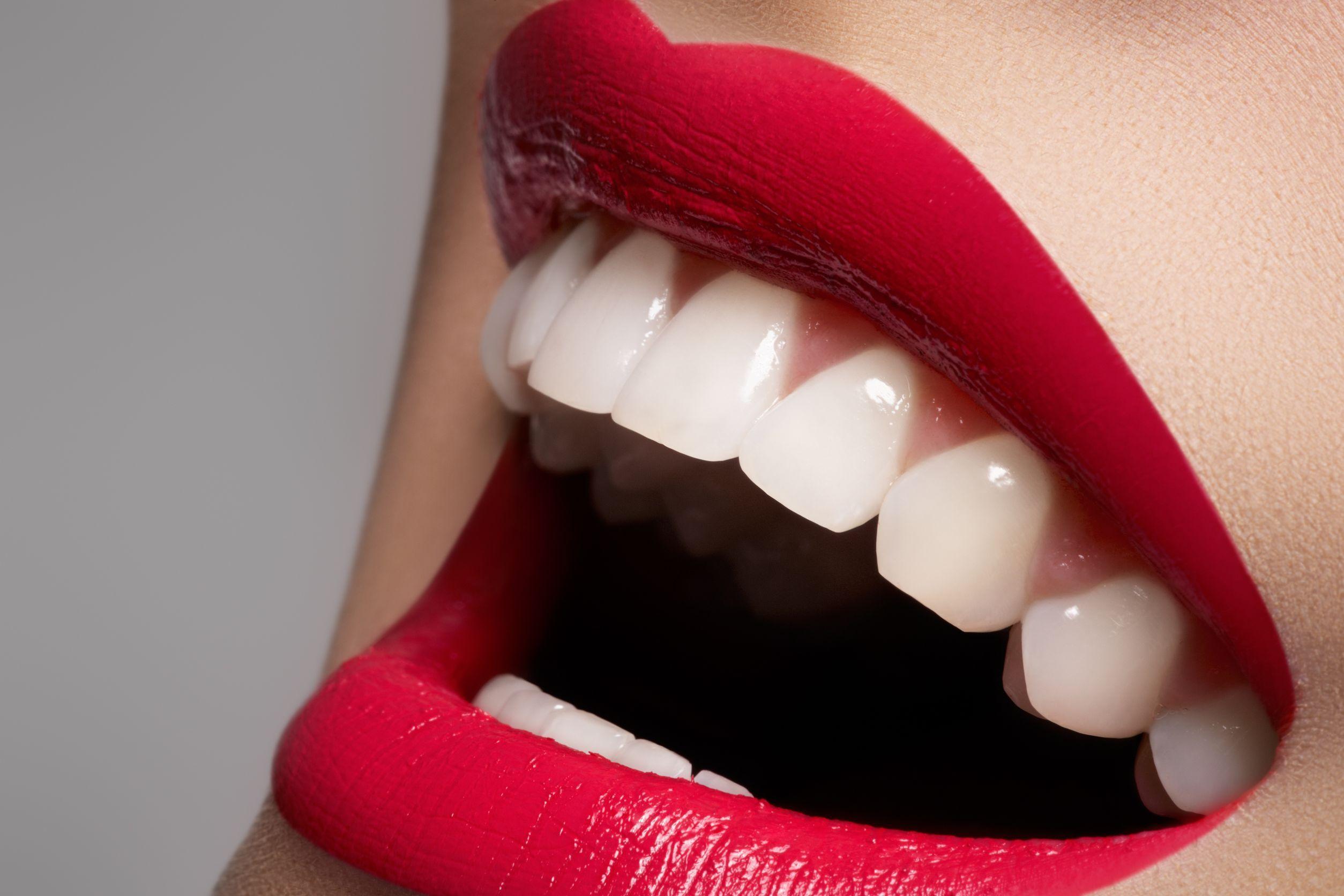 dientes-blancos2