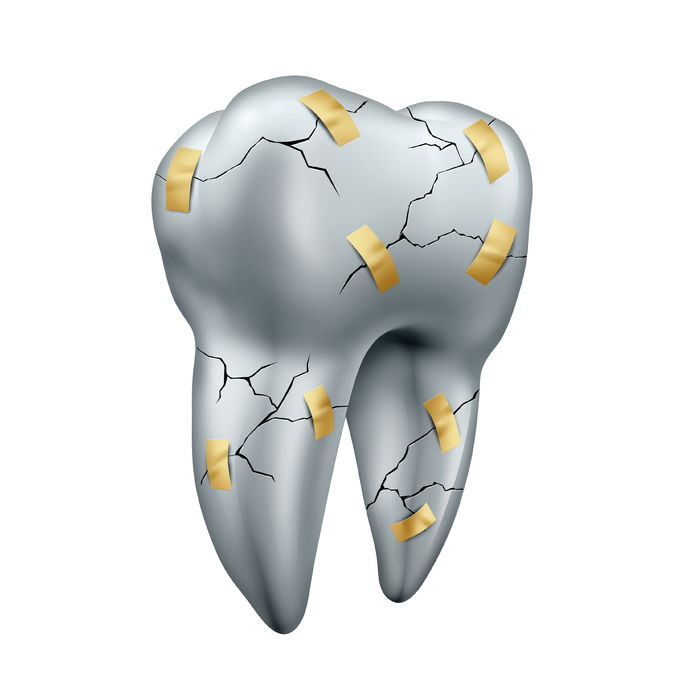38697283 - tooth repair dental concept as a health care symbol for dentist surgery or fixing or repairing damaged teeth due to decay or cavities as a cracked molar with tape as a dentistry metaphor isolated on a white background.