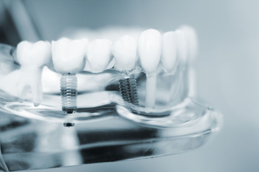 70250391 - dentists tooth plastic model with screw implant for teaching, learning and patients in dental office showing teeth and gums.