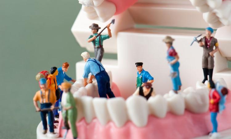 45197337 - model of the teeth