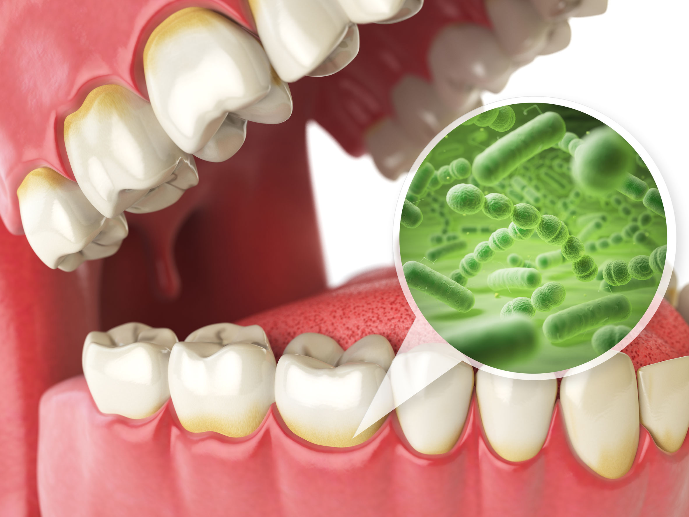 71865960 - bacterias and viruses around tooth. dental hygiene medical concept. 3d illustration