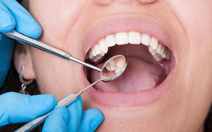 enfermedades-caries-dentales