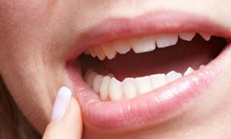 movilidad-dental-se-mueven-los-dientes-1024x431-1024x585